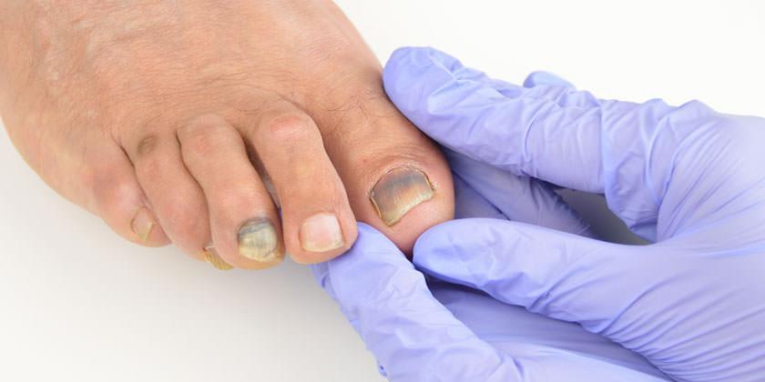 cuidado de las uñas negras