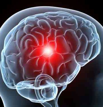 problemas con el dolor de cabeza