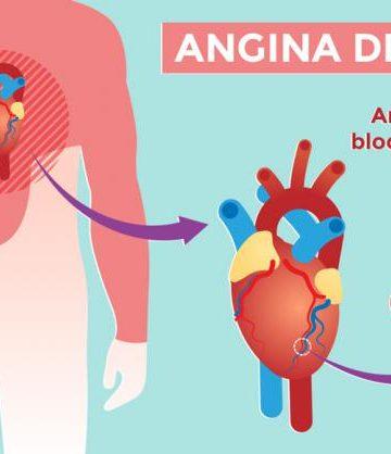 explicación de la angina de pecho