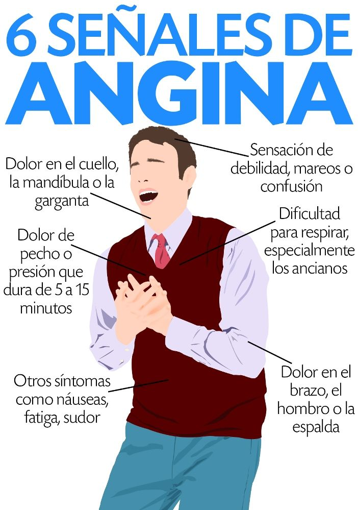 infografía sobre la angina de pecho