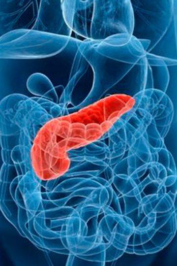 radiografía de la pancreatitis aguda