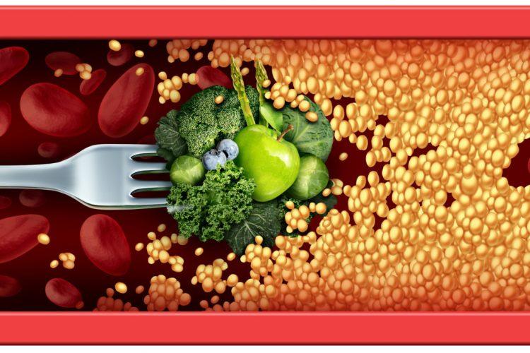 evita el colesterol